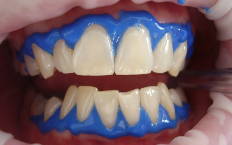 Professional Ways of Teeth Whitening and Procedures - Mplsdental