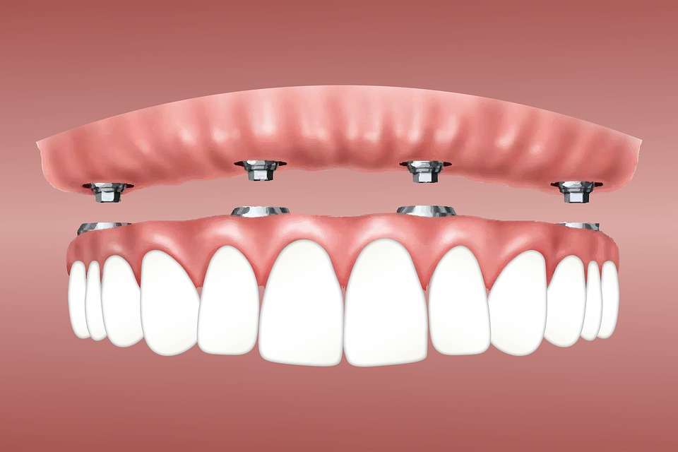Myths and Facts about Dental Implants - MplsDental, MN