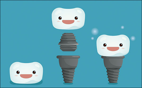 About Dental Implants | Minneapolis Dental