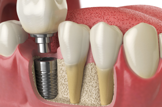 Dental Implants & Risks Associated with it