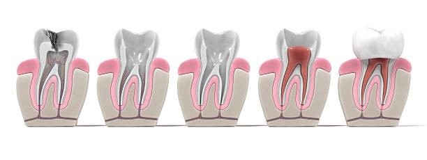 ROOT CANAL TREATMENT INFECTIONS